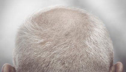 Pulling Your Hair Out? It Might Just Help Reverse Baldness