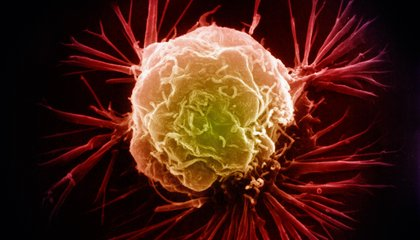 Using Zinc to Detect Breast Cancer Early