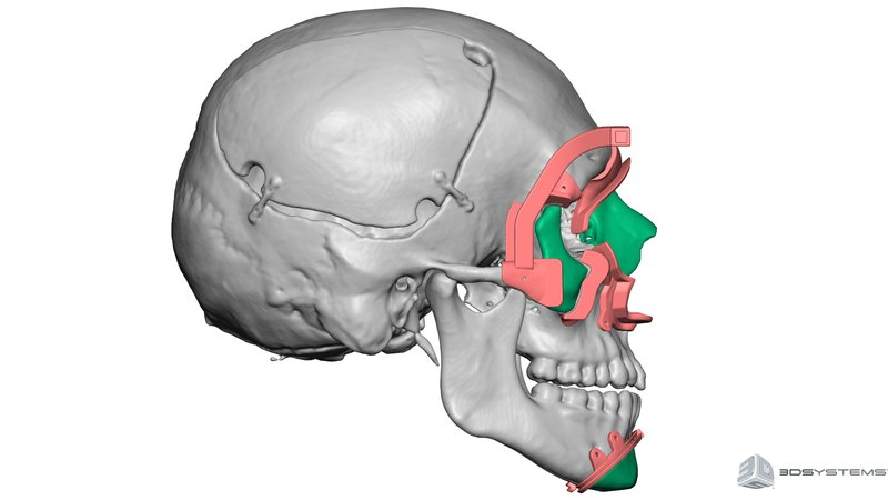 An image created by 3D modeling of a face transplant donor.  The contrasting colors provide a patient-specific cutting guide for surgical planning.