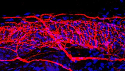 You've Never Seen Nerve Endings Like These