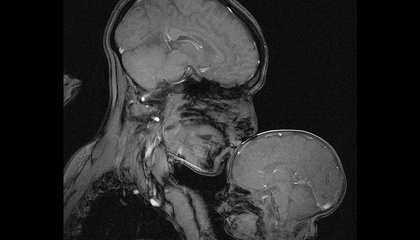 Why I Captured This MRI of a Mother and Child