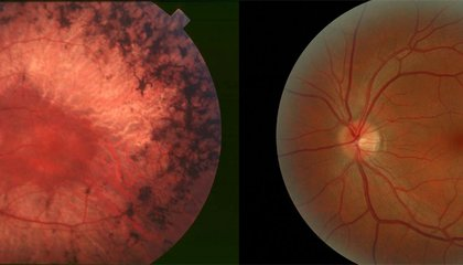 Newly Approved Retinal Implants Can Help Blind People See