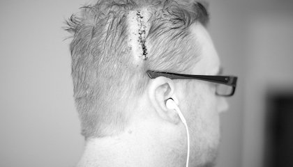 A Tiny, Transparent Skull Implant Could Simplify Brain Surgery