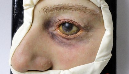 See Over 2,000 Wax Models of Skin Diseases at This Swiss Medical Moulage Museum