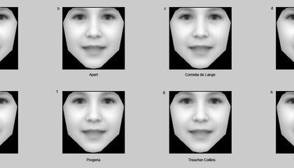 This Software Can Spot Rare Genetic Disorders Just by Looking at a Person's Face