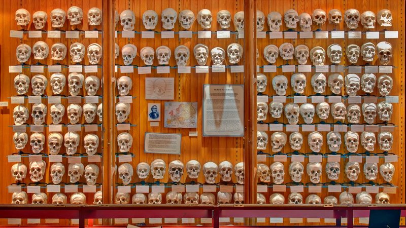 The Hyrtl Skull Collection at the Mütter Museum continues to be displayed together. Recently, the museum organized a 'Save Our Skulls' fundraising campaign in order to better conserve the collection.