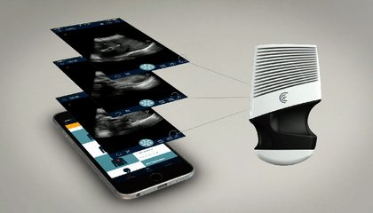 This Handheld Ultrasound Scanner Could Be the Next Stethoscope