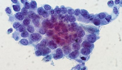 More Women Die of Cervical Cancer Than Previously Thought
