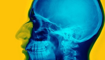 The Unique Vibrations of Your Skull Affect How You Hear Music