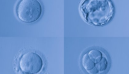 Excess Embryos: Families Are Now Adopting Unused Embryos Leftover from IVF Treatments