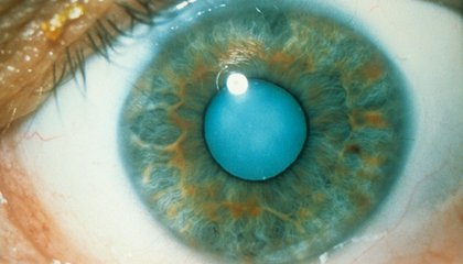 This Chemical Compound Could Melt Away Cataracts