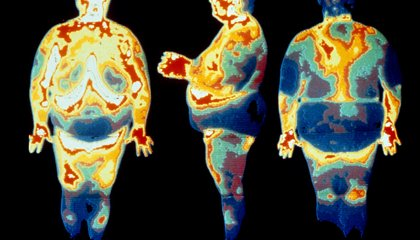 A Third of All People on Earth Are Overweight Or Obese
