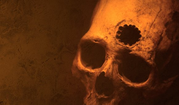 Preview thumbnail for video'Ask Smithsonian: Do People Really Drill Holes in Their Heads?